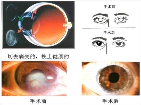 角膜移植手術流程